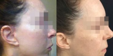 facelift colombia 240 - 5-min