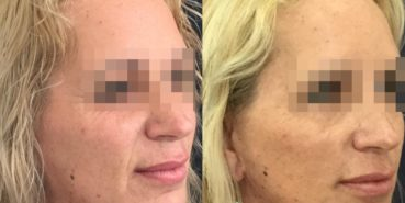 facelift colombia 325 - 2-min