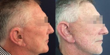 facelift colombia 352 - 3-min