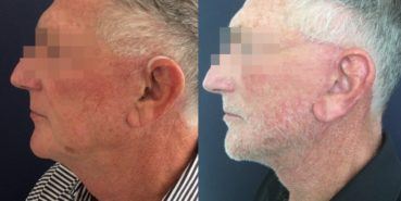 facelift colombia 352 - 5-min