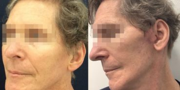 facelift colombia 362 - 2-min