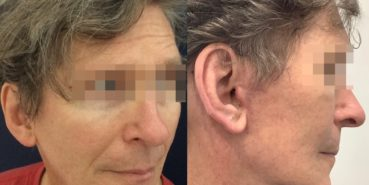facelift colombia 362 - 4-min