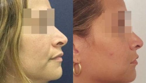 facial fat grafting colombia 286 - 5-min