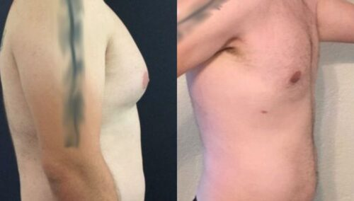 male reduction colombia 258-5-min
