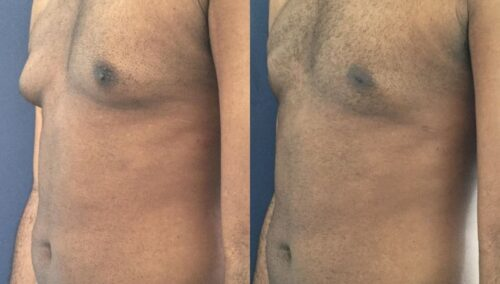 male reduction colombia 319-2-min
