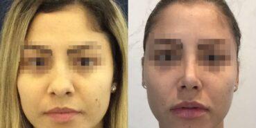 rhinoplasty colombia 225-1